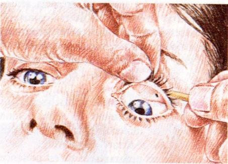 L'Examen par l'Observation