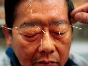 Traitement par l'acupuncture